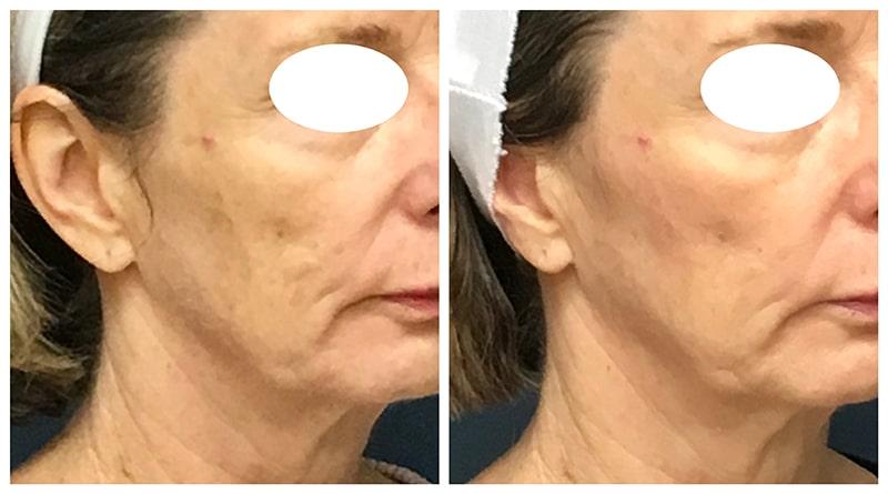 laser skin brightening