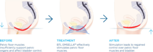 urinary incontinence, Emsella™: Effective Treatment for Urinary Incontinence